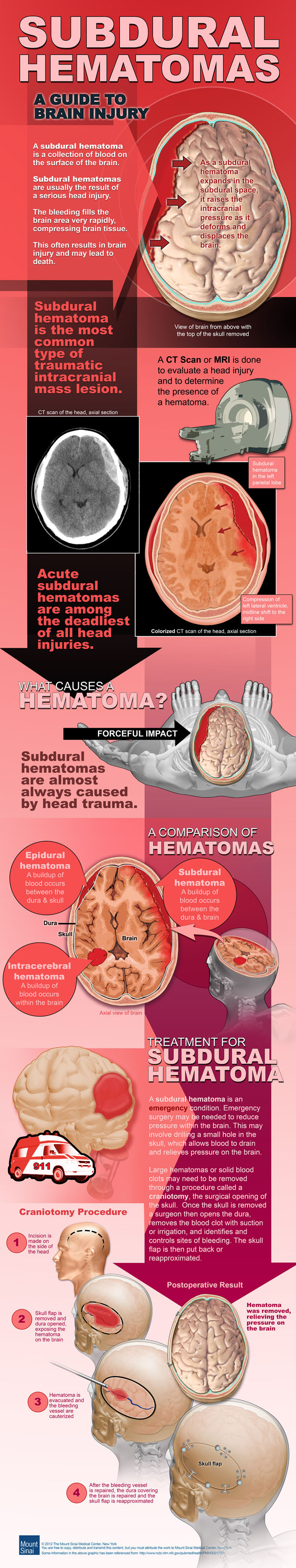 Brain injuries infographic